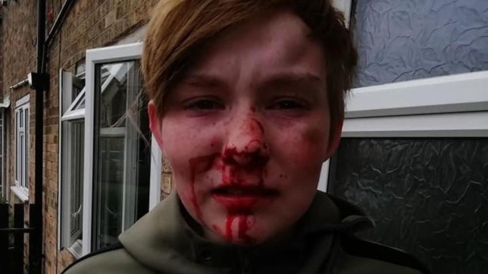 skynews-ellie-mae-mulholland - Hull hate crime.jpg
